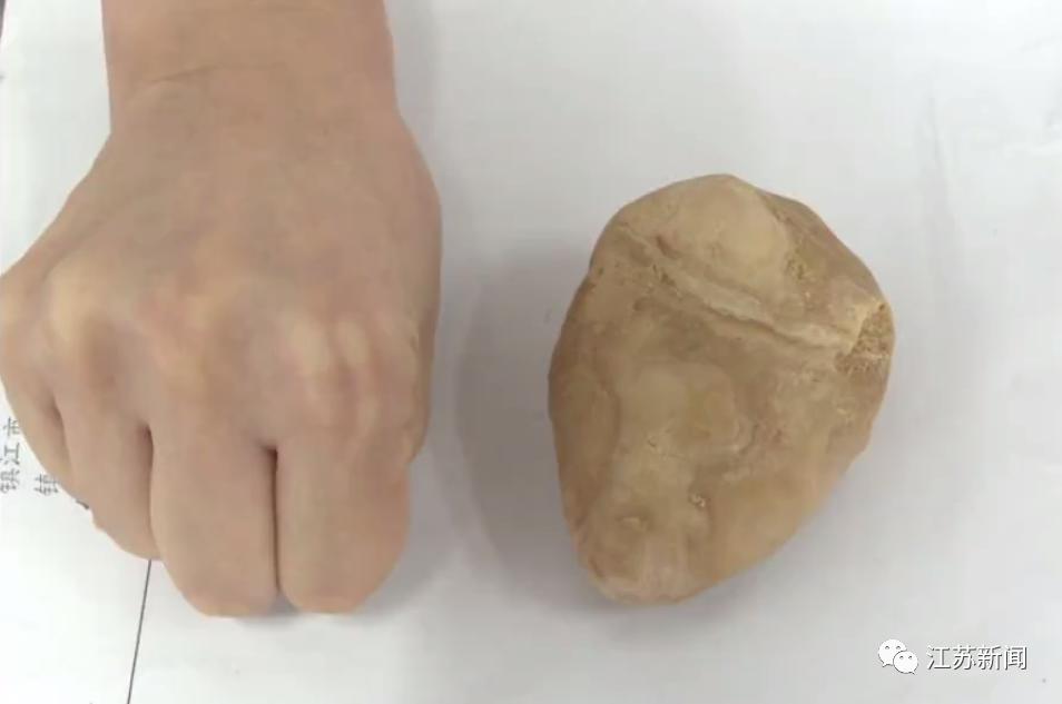 拳头大小、重约一斤,这块石头竟是从膀胱里取出来的!你敢信?